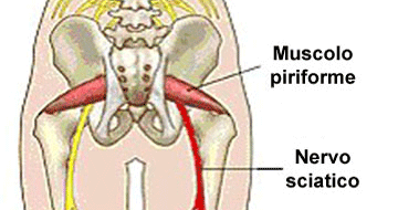 4 posizioni yoga per la sciatica